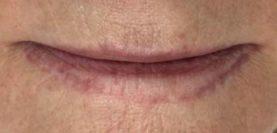 PMU Permanent MakeUp Tattoo Laser Entfernung Behandlung Vorher Nachher Triemer Aesthetics Dresden