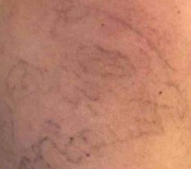Tattoo Laser Entfernung Behandlung Vorher Nachher Triemer Aesthetics Dresden